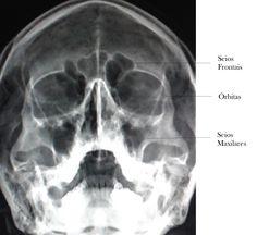 Dando continuidade a série de análise da qualidade das imagens radiográfica, vamos mostrar agora a imagem ideal adquirida da incidênc...