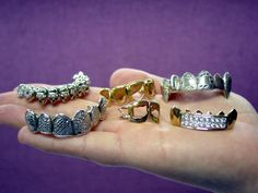 Gold Grillz – A Hedge Against Dental Monotony