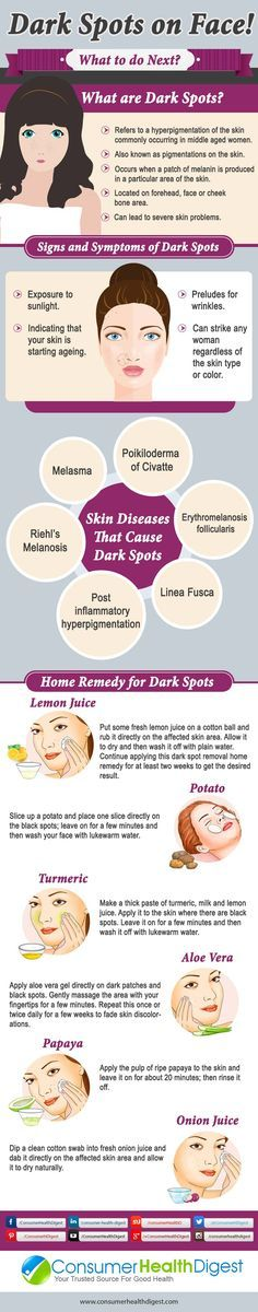 Great natural tips to remove dark spots on your skin. Awesome DIY skin care guide! Love it!