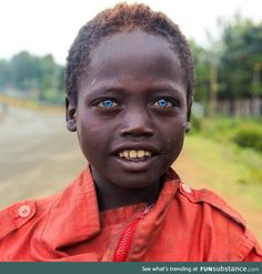 Ethiopian boy with blue eyes on the streets of Jinka (no photoshop) - FunSubstance African Culture, African History, Precious Children, Beautiful Children, Rare Eye Colors, Rare Eyes, Magic Eyes, Shaved Head, No Photoshop