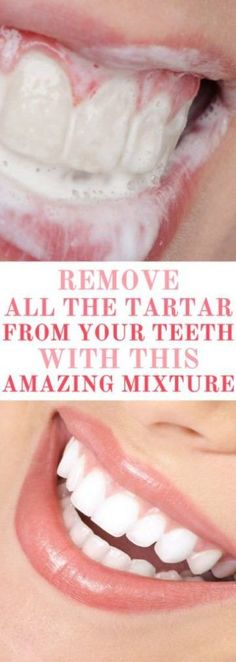 Try This Amazing Mixture And Remove All the Tartar From Your Teeth! #teeth #teethcare #beauty #remove #remedies