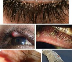 Besides the cosmetic perks, expensive cost, and high maintenance there are hidden dangers of eyelash extensions beauty salons don't want you to know. This is because lash extensions can cause major issues to your overall health and vision. Natural Fake Eyelashes, Perfect Eyelashes, Artificial Eyelashes, Bad Eyelash Extensions, Individual Eyelash Extensions, Big Lashes, Whispy Lashes, Eyelashes Makeup, Eyelash Tinting