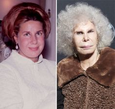 Duchess of Alba plastic surgery before and after photos showing lip fillers and nose job. See Plastic surgery disaster yourself. Bad Celebrity Plastic Surgery, Botched Plastic Surgery, Bad Plastic Surgeries, Plastic Surgery Before After, Plastic Surgery Gone Wrong, Worst Celebrities, Celebs, Nada Personal, Operation