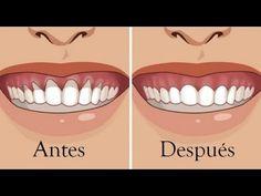 ¿Sus encías son cada vez menos? He aquí 4 remedios naturales para curarlas - YouTube