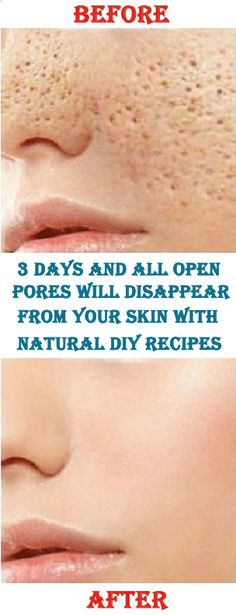 3 Days and All Open Pores Will Disappear From Your Skin with natural DIY recipes – Care – Skin care , beauty ideas and skin care tips Open Pores On Face, Face Mask For Pores, Diy Face Mask, Pore Mask Diy, Face Skin, Tips And Tricks, Home Beauty Tips, Beauty Hacks, Diy Beauty