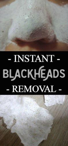 How To Remove Nasty Blackheads Instantly