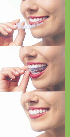 Free consultation for OrthoSnap, a new kind of invisible braces