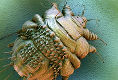 Scabies  These mites dig tunnels under your skin and lay eggs in them. You can get them if you have close contact or sleep in the same bed with someone who has them. They're too small to see, though. They prefer the skin between fingers, arm and leg folds, the penis, breasts, and shoulder blades. It can take up to a month for you to feel the itch. Your doctor will give you something to get rid of them.
