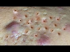 Enjoy Your Day with HienNguyen Acne Treatment #07 - YouTube Acne Treatment, Pimples, The Creator, Youtube, Youtubers, Youtube Movies