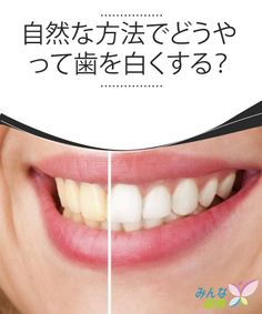 自然な方法でどうやって歯を白くする? 長い間歯医者さんに行っていないと、その間にたばこ、コーヒー、お茶などが原因であなたの大切な歯が黄ばんでしまっていませんか? それが原因で笑顔を見せたくないという方も多いと思います。