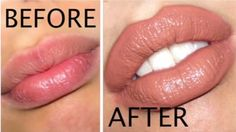 How to Make Your Lips Bigger? Who does not want bigger lips like one that Anjelina Jolly. They look so stunning and gracious with the fuller lips. However, most of these stars chose liposuction to get plumper lips and some of them just experiment with their looks what later become a fashion. You cannot vouch on liposuction... #BoldLips, #ExerciseForBiggerLips, #GetBiggerLipsNaturally, #LipCare, #Lips, #MakeLipsBigger, #MakeYourLipsBiggerWithMakeup, #PlumpyLips, #TricksToMak