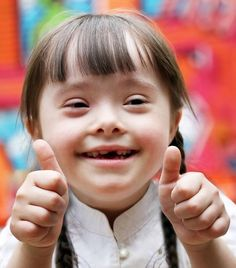 Down Syndrome and Language Acquisition - pinned by @PediaStaff – Please Visit ht.ly/63sNtfor all our ped therapy, school & special ed pins