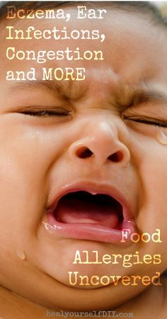 Eczema, Ear Infections, Congestions, and More: Food Allergies Uncovered. Baby Health, Kids Health, Health And Nutrition, Health Tips, Health And Wellness, Health Fitness, Get Healthy, Healthy Life, Healthy Living