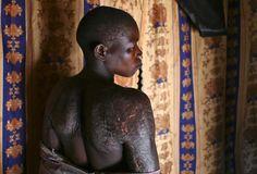 5 de marzo 2015 Hellen Akello, de 38 años, víctima de los ataques al distrito de Lira por miembros de el Ejército de Resistencia del Señor enseña sus heridas durante una visita del fiscal de la Corte Penal Internacional a Uganda. El hombre está visitando a los heridos por esta guerrilla que ha atemorizado al país durante casi tres décadas.