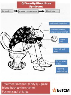 Ever wish for a visual of what a Qi Failing Pattern might look like? Here's one!
