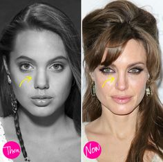 Hmm, the gorgeous actress claims she has no problem with plastic surgery on ....others. But these photos seem to tell another tale! Why not be honest about it? Angie - why be shy about a nose job? ...