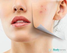 Tratamiento Frax face: #renueva tu piel, para marcas de #acné, #cicatrices, manchas, etc, Paquete de 8 sesiones, evaluación GRATIS