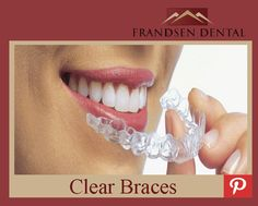 What are clear braces? Clear braces or invisible braces are an excellent alternative to traditional metal braces. #OremDentist