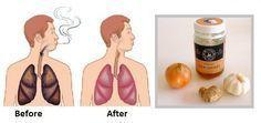 Como limpiar los pulmones del tabaco