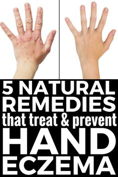 5 Natural Hand Eczema Remedies that Work! There are different types of hand eczema, and the causes can vary from person to person, but on thing is certain: itchy, red, raw, weeping, and dry skin can be pretty miseral. Check out our best tips and natural products that help treat and prevent hand eczema in the winter and beyond and say YES to beautiful skin! #eczema #psoriasis #itchy #skin #dermatitis #remedies #naturalremedies #handeczema