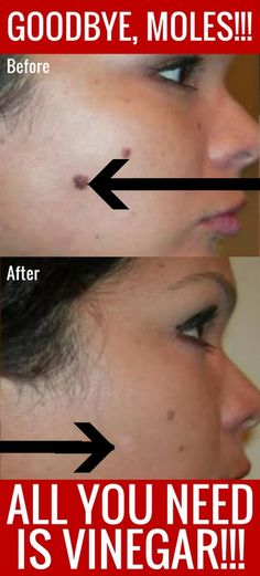 Who knew you can remove moles at home with just vinegar!?! Pinning this so that I can find it again later...