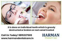 It is done on individual tooth which is grossly destructed on broken or root canal treated. we provide the facilities that are equipped with the latest Technology in Best Dentist in Mohali. Manjeet Inder Kaur at 9815327509 Best Dentist, Dentist In, Dental Cosmetics, Dental Problems, Root Canal, Latest Technology, Dental Care, Tooth, Dental Caps