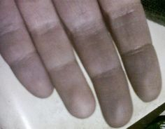 Dead looking, painful, hands, Raynauds Syndrome