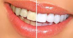 Détartrage des dents maison :voila une recette maison à base de vinaigre blanc et du citron pour avoir des dents saines et blanches naturellement.