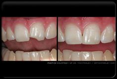 BONDING before and after pics Dental | Dentist | Bonding | Veneers | Teeth | Chipped Tooth www.simifamilydentist.com