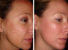 26 remèdes naturels géniaux qui vont faire disparaître vos imperfections ! noté 5 - 4 votes Il arrive à beaucoup de gens d'avoir des boutons ou des points noirs de temps en temps. Et les symptômes liés sont variés : la peau est rugueuse, les pores sont engorgés, la peau est irritée et rouge. Il...