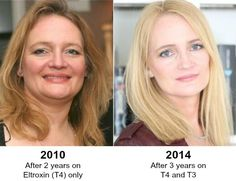 From Hypothyroid to Healthy HypothyroidMom.com Oh how I love to hear success stories! #hypothyroid