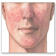 Seven Important Causes Of Acne