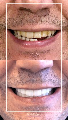 Our patient Abdelwahed came all the way from Paris to place dental crowns. He found a perfect smile and is satisfied with it! 😍 We love it and you? For more information, please contact us !. #Bodyexpert #Testimony #BeforeAfter #SmilePerfect #ImplantsDental #DentalCrowns #TestimonyDentalCare #PerfectTeeth #MedicalTourism #DentalCare #DentalClinics #Turkey #Istanbul #Hollywoodsmile #Emax #Zirconia Implants Dentaires, Dental Implants, Perfect Teeth, Perfect Smile, Medical Care, Dental Care, Dental Crowns, Teeth Care, Hair Transplant