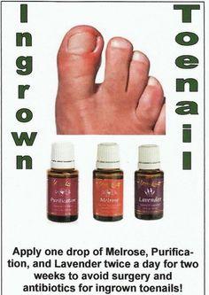 Ingrown toenail remedy