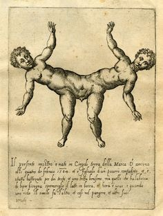 Engraving made by Giovanni Battista de' Cavalieri, Italy, Original title: Opera nel a quale vie molti Mostri de tute le parti del mondo antichi et moderni . (Monsters from all parts of the ancient and modern world). Medical Drawings, Medical Art, Creepy History, Conjoined Twins, Human Oddities, Satanic Art, Arte Obscura, Vintage Medical, Weird Creatures