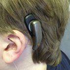 Un implante osteointegrado ofrece una solución cuando no se admite audífono