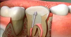 Toxic Teeth: How Root Canal Procedures Dramatically Increase Your Risk of Chronic Disease