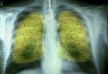 Βόμβα υγείας: Αυτό είναι το απίθανο ρόφημα που εξαφανίζει πίσσα και νικοτίνη από τα πνευμόνια!