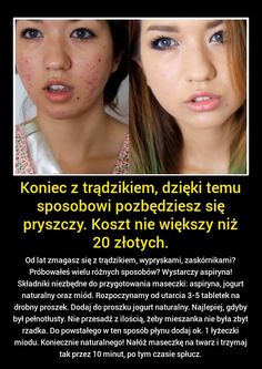 Znalezione obrazy dla zapytania trądzik zaskórnikowy Beauty Care, Diy Beauty, Beauty Skin, Health And Beauty, Beauty Hacks, Face Care, Body Care, Skin Care, Cosmetic Treatments