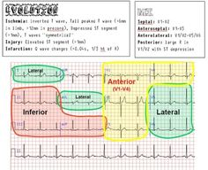 EKG/ECG Cheat Sheet