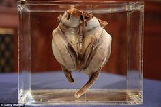first artificial cardiac pump goes on display The Liotta-Cooley artificial heart, pictured, was implanted into Haskell Carp on August Liotta-Cooley artificial heart, pictured, was implanted into Haskell Carp on August 1969 St Luke's Hospital, Artificial Heart, The Time Machine, Medical Science, Medical Technology, Vintage Medical, Medical Equipment, Heart Attack