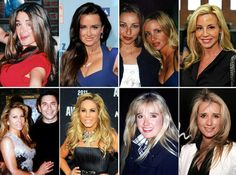 The Real Housewives of Beverly Hills: Plastic Surgery Before and After (PHOTOS)
