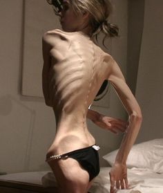 """Do you or someone you know suffer from an eating disorder? Bulimia, anorexia, severe obesity, or bod. - """"/ck/ - Food & Cooking"""" is imageboard for food pictures and cooking recipes. Body Reference, Anatomy Reference, Reference Images, Skinny Love, Cognitive Behavior, Medical History, Human Anatomy, Body Anatomy, Poses"""