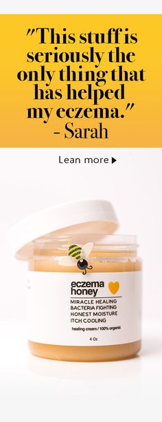 Want to live your life without the daily struggles of eczema? Made with pure honey and grated beeswax, Eczema Honey is safe, non-toxic and super effective at controlling the itch. Try our 100 all natural organic honey healing cream today! Skin Tag Removal, Teeth Whitening, Natural Healing, Health Remedies, Face And Body, Healthy Skin, Skin Care Tips, Body Care, Shopping