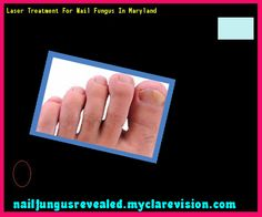 Laser treatment for nail fungus in maryland - Nail Fungus Remedy. You have nothing to lose! Visit Site Now