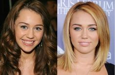 Celebrity Miley Cyrus Nose Job Before After