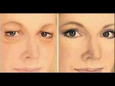 How to Get Rid of Drooping Eyelids with This Natural Remedy!