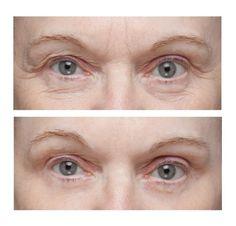 Морщины под глазами: как избавиться (убрать) | Будь красива! | Постила