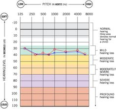 audiogram with nice descriptions