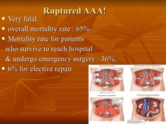 Nice....  abdominal aortic aneurysm